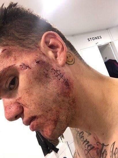 Le visage tuméfié d'Ederson (Man. City) après le choc subi face à S. Mané (Liverpool) ce week-end.